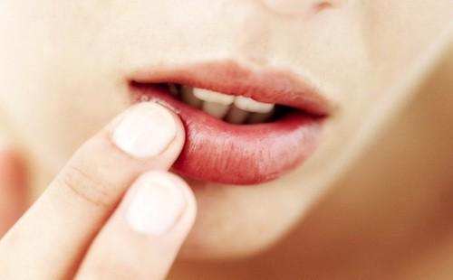 Как лечить простуду на губах при беременности: эффективные и безопасные средства